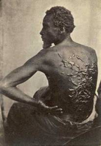 An old classic picture of a slave showing healed scars from multiple whippings.